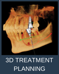 3D TREATMENT PLANNING sirona cone beam CT